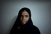 Retrato de una mujer, Kanwal Kayum, con el rostro abrasado por el ácido que le arrojó el hombre del que se había divorciado. Emilio Morenatti.